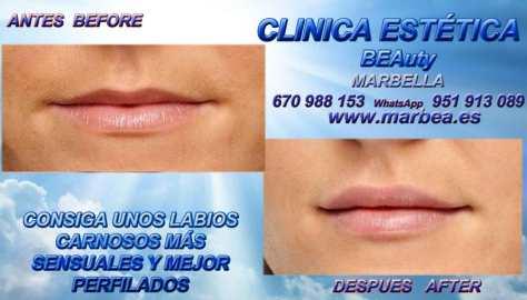 Disponemos de los más avanzados y actuales tratamientos en medicina estética facial y corporal por AUMENTO LABIOS MARBELLA , AUMENTAR LABIOS MARBELLA , VOLUMEN LABIOS MARBELLA ,
